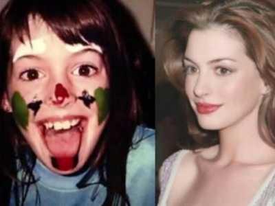安妮海瑟薇童年照 宇宙级美人的童年照